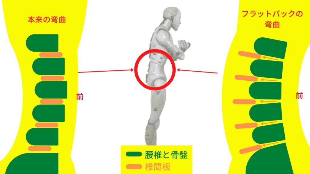 腰椎の弯曲の違い