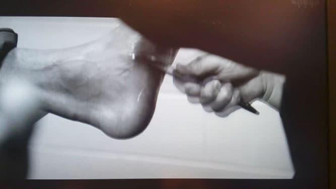 アキレス腱断裂後のリハビリ