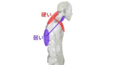 猫背(上位交差症候群/頭部前方変位)