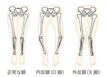 左右の足の長さが違う?