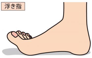 浮指の改善方法